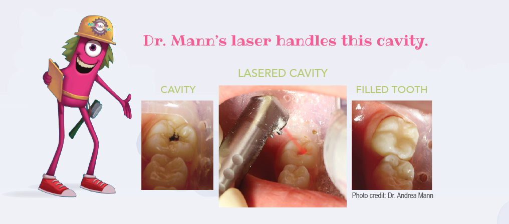 Cavity Photos - before and after